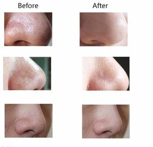 High quality easy use Skin health care vacuum blackhead remover tool