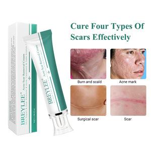 BREYLEE acne scar removal cream for skin care