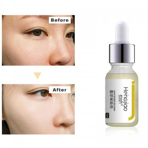 Private Label Whitening Serum Yeast Brightening Skin Tone Serum