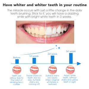 3D Non Peroxide or 6% HP Teeth Whitening Strips