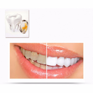 Teeth Whitening Activated Hydrogen Peroxide Pen