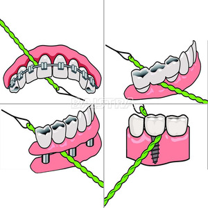 AZDENT Cheap Price Implant and Bridge Used Colored Green Dental Floss