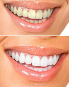Dental teeth whitening gel syringe home use teeth whitener gel 35% hydrogen peroxide