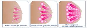 Breast Care Breast enlargement breast enhance machine