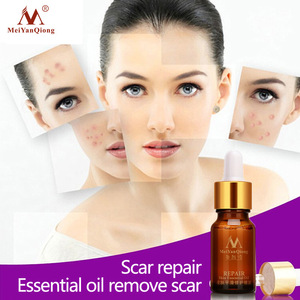 MEIYANQIONG Skin Care 100% Pure Natural Organic Stretch Marks Scar Removal Lavender Essential Oil 10ml