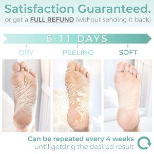 Hot sell best effective Exfoliating peeling nourishing magic foot mask remove dead skin heels foot peeling feet peel mask