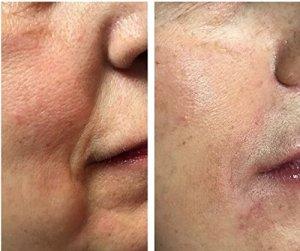 Private Label Anti Aging Wrinkles Removing Mens Skin Care Face Cream Moisturiser